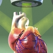 How can radiation therapy cause heart disease?