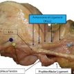 The knee's newest known ligament