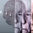No end to dementia