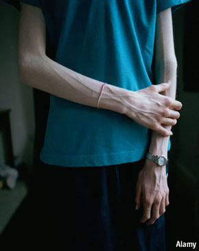 """pro anorexia websites essay Social media outlets can be of great comfort to people with eating disorders  pro-anorexia (""""pro-ana"""") and pro-bulimia websites and online forums."""